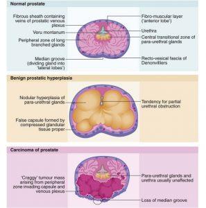 benign prostatic hyperplasia lobe