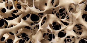 brittle bones in adults