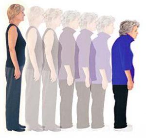 osteoporosis women