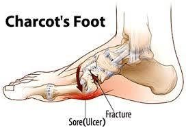 Charcot Foot | Diabetes affects