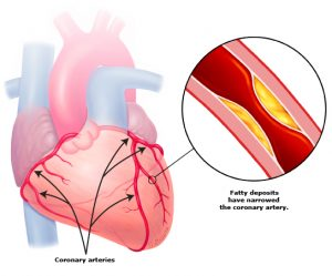Coronary Artery Disease (Large Blood Vessels) Increased risk of a heart attack.